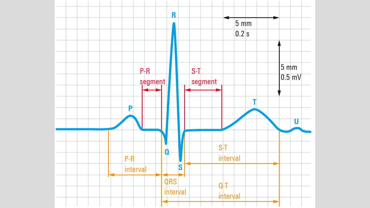 Capturing small ECG signals in medical applications   Rohde