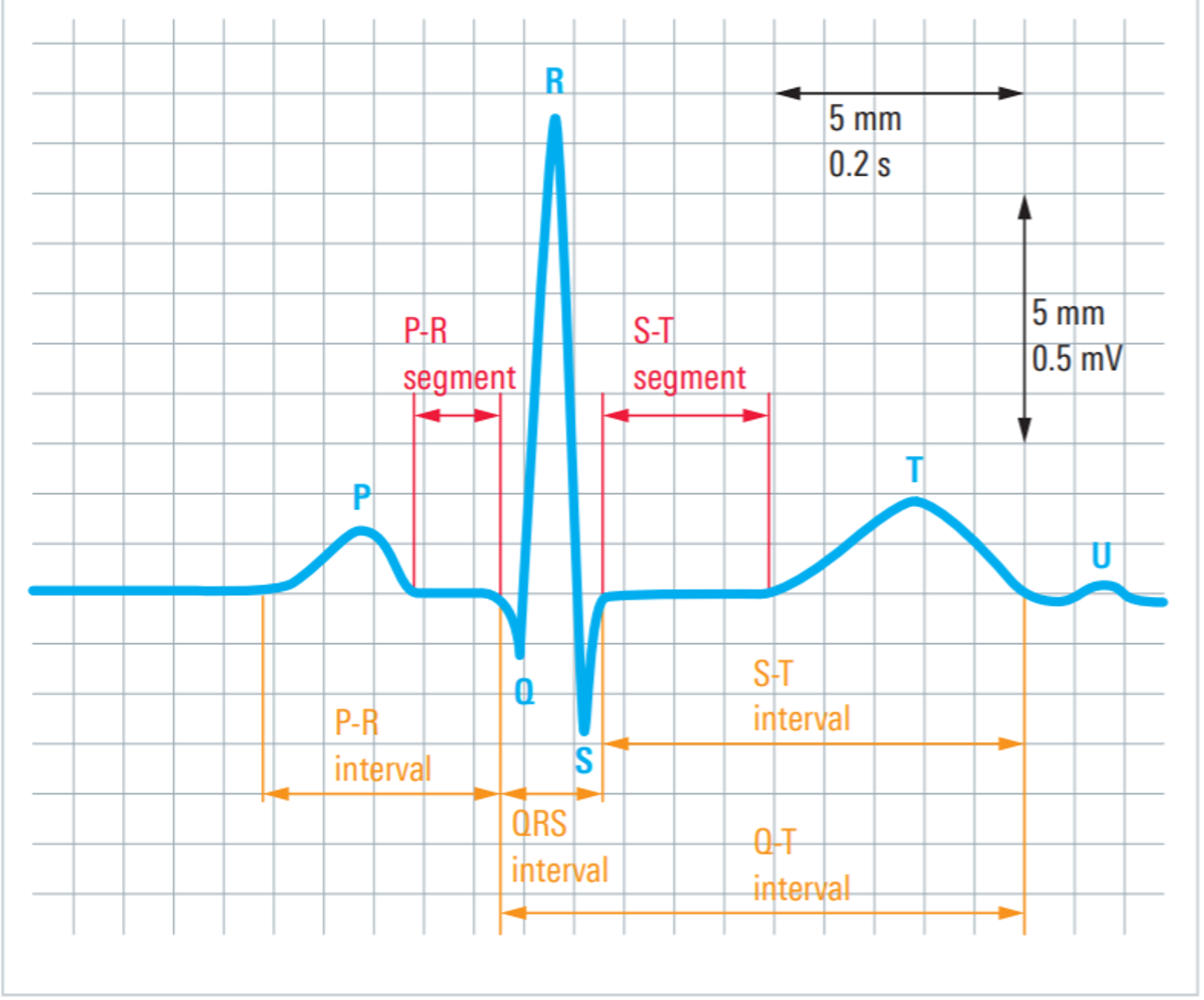 ECG signal from lead 1