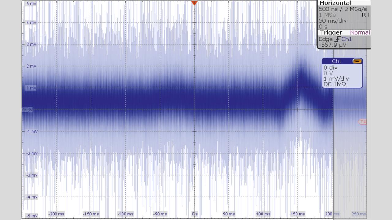 Captured ECG signal after executing the Autoset.
