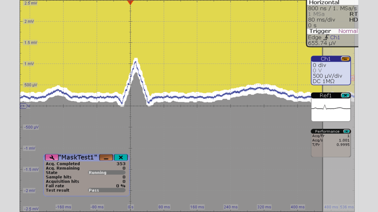 Captured ECG signal using 500 μV/div scale, HD mode and mask test.