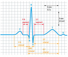 RTE Capturing small ECG signals in medical applications_01