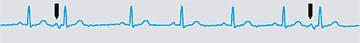 Nonperiodic disturbances in a periodic ECG signal